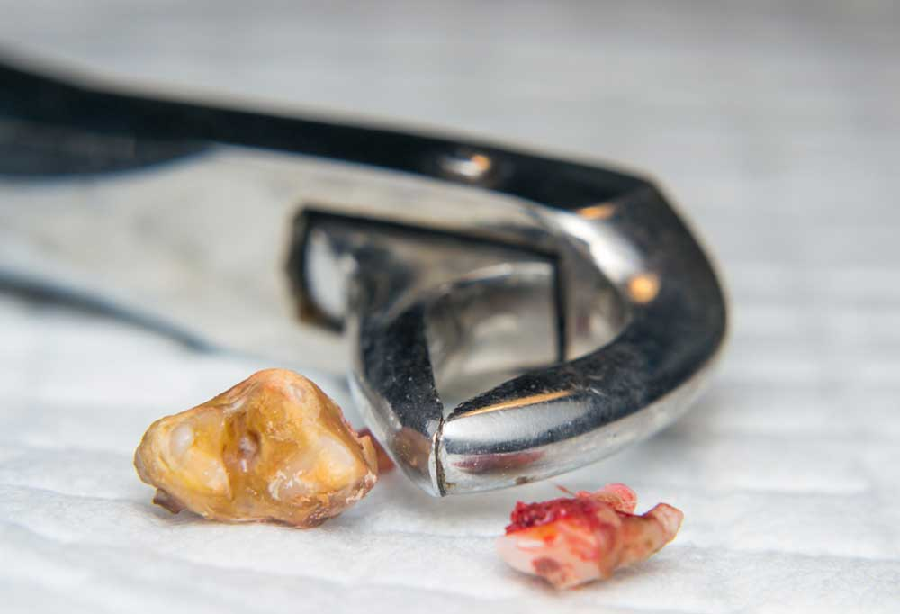 Removed dog tooth with tooth pulling tool on white cloth